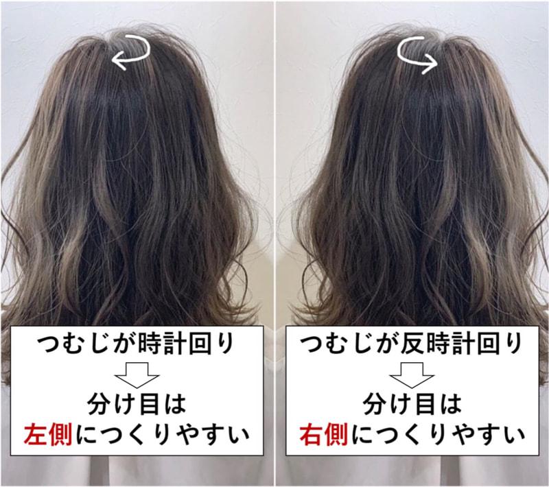 つむじ 前髪