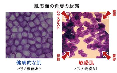 バリア機能ありとバリア機能なしの比較図の写真